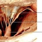 Image result for chordae tendineae papillary muscles and cusps