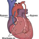 Overview of Bypass Surgery and Coronary Artery Bypass Grafting