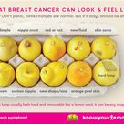 Know Your Lemons Breast Cancer Symptoms
