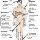Cirrhosis-good chart that explains the effects on the body related to disease progression.