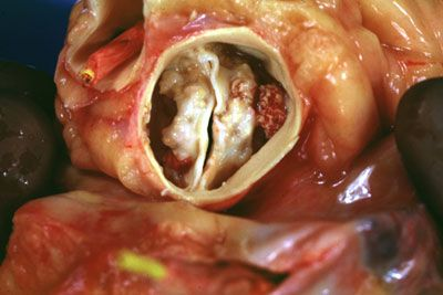 This photograph, also from an autopsy specimen, shows the aortic valve from above, with a short segm