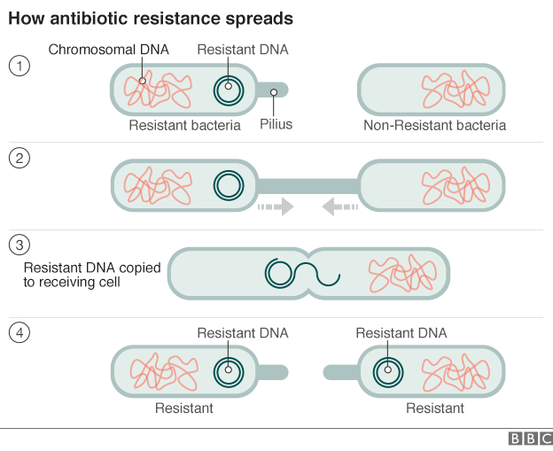 Antibiotic resistance: World on cusp of 'post-antibiotic era'.
