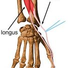 Extensor Pollicis Brevis - Anatomy - Orthobullets.com