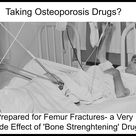 If you are taking Osteoporosis Drugs, be prepared for femur fractures. Osteoporosis drugs have nasty