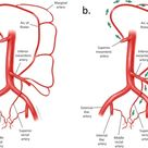 Image result for marginal artery of drummond
