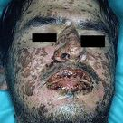 Stevens Johnson syndrome (SJS) and toxic epidermal necrolysis (TEN)