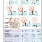 Spread of Excitation in the heart
