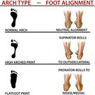 Most uncomfortable arches can be addressed by adding cushioning and support through shoe changes and