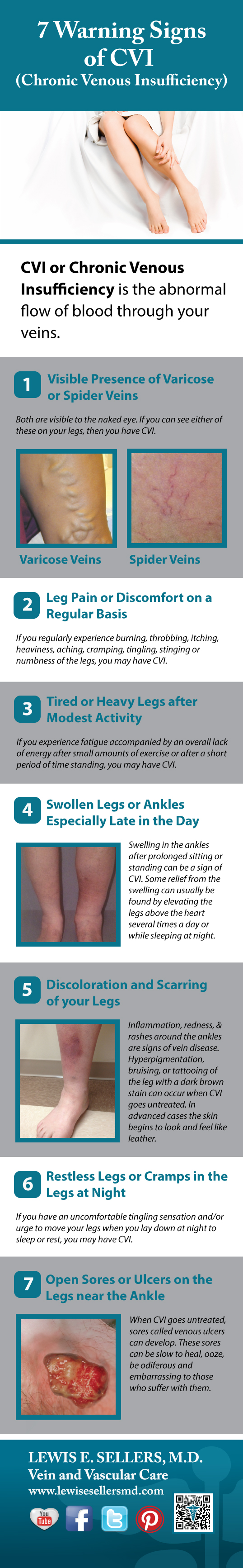Check out the 7 Signs of Chronic Venous Insufficiency or CVI, the cause of Spider and varicose veins