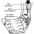 Mobilization with Movement for Ankle Inversion Sprains