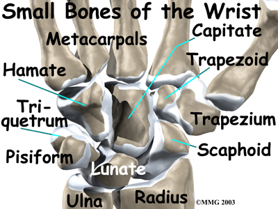 Refracture always exists with carpal bones. Therapy should not be aggressive and exercises should be