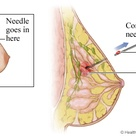 Needle goes in here - Breast Biopsy