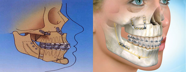 Orthognathic surgery is designed to correct conditions of the jaw and face.