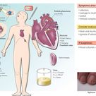 Infective endocarditis: major criteria include two positive blood cultures, evidence on echo, &