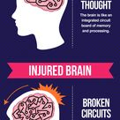How a Concussion Happens