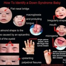 How to indentify a Down Syndrome Baby