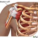 shoulder tendons anatomy - Google Search