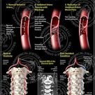 Cervical Artery Dissection is a tear in the lining of the vessels (carotid or vertebral artery)