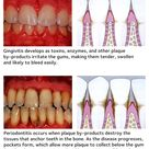 Pyorrhoea (Periodontitis). Periodontitis is the disease affecting the supporting areas of the teeth.