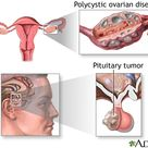 Hypopituitary Amenorrhea.  Cease of menses due to lack of appropriate LH and FSH synthesis secretion