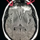 #Brain #MRI of a former #kickboxer shows brain #damage from repeated #head #trauma. #MMA #pain #radi