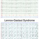 Normal EEG Awake compared to Lennox-Gastaut Syndrome
