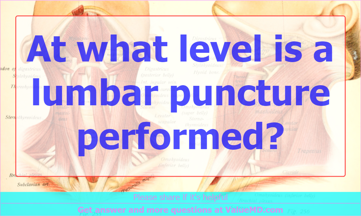At what level is a lumbar puncture performed?, Anatomy - ValueMD ...