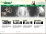 Hipreplacement.co.uk